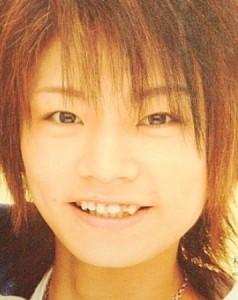 横尾渉前歯kyosei (2)